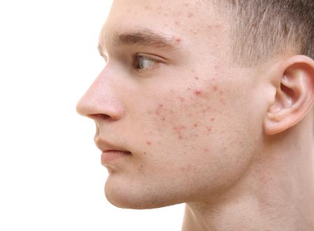 Hübscher junger Mann mit Hautproblem auf weißem Hintergrund