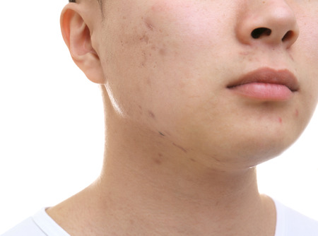 Young Asian man with problem skin on white background, closeup 免版税图像