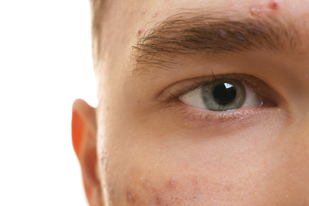 Face of handsome young man with problem skin, closeup