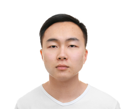 Young Asian man with problem skin on white background