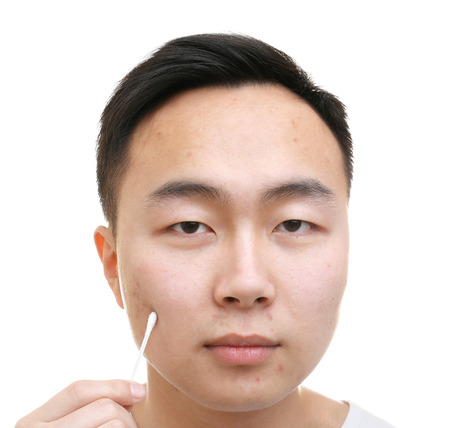 Young Asian man with problem skin and cotton bud on white background Stock Photo
