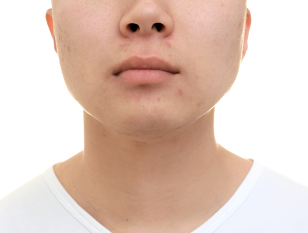 Handsome young man with problem skin on white background, closeup
