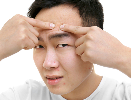 Young Asian man popping pimples, on white background