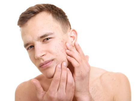 Schöner junger Mann mit Problemhaut auf weißem Hintergrund