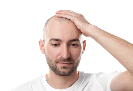 Hair loss concept. Man touching his bald head on white background Stock Photo