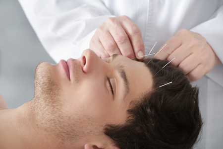 Young man undergoing acupuncture treatment in salon Фото со стока