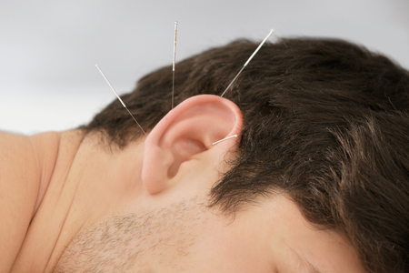 Man's ear with needles. Acupuncture concept Stock Photo
