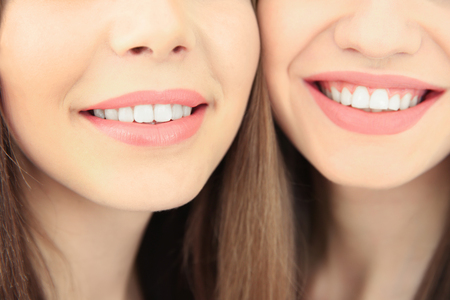 Lovely smiling lesbian couple, closeup