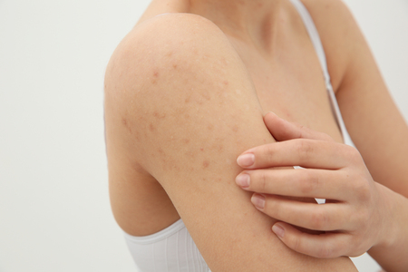 Allergy concept. Woman scratching her shoulder with rash on white background