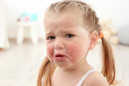 Retrato de niña llorando con síntomas de diátesis en la sala de luz