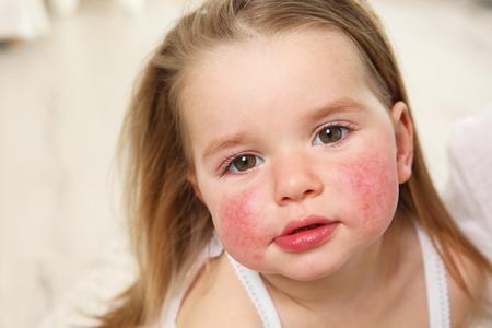 Porträt eines kleinen Mädchens mit Diathesesymptomen auf den Wangen im hellen Raum