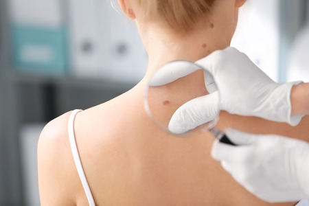 Dermatologist examining birthmark of patient in clinic. Cancer concept Stockfoto