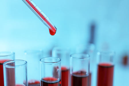Dripping blood samples into test tubes, closeup