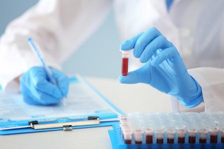 Frau, die mit Blutprobe im Reagenzglas am Tisch arbeitet Standard-Bild