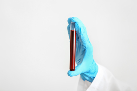 Lab worker holding test tube with blood sample on white background