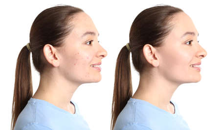 Young woman before and after acne treatment on white background