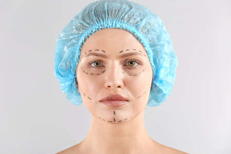 Young woman with marks on her face against light background. Concept of plastic surgery