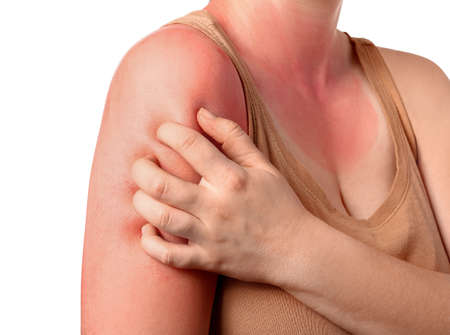 Woman with red sunburned skin against white background, closeup
