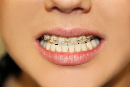 briquettes: briquettes on upper teeth of the girl Stock Photo