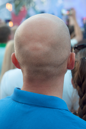 Nape of a bald middle-aged man in a blue t-shirt in the city. Rear view of bald man.  The problem of age baldness