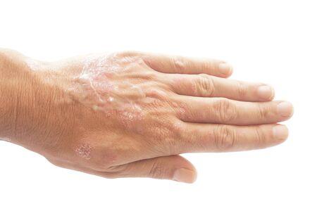 Psoriasis vulgaris und Pilz an der Hand und den Fingern des Mannes mit Plaque, Hautausschlag und Flecken auf der Haut, isoliert auf weißem Hintergrund. Genetische Autoimmunerkrankung. Beschneidungspfad nach innen