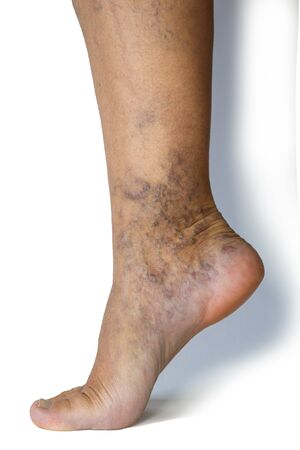 Varicose veins on a female legs. Phlebology problem. Woman's health.