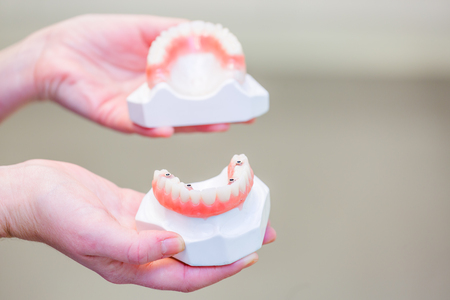 dental resin: Hands holding a set of dentures. False teeth