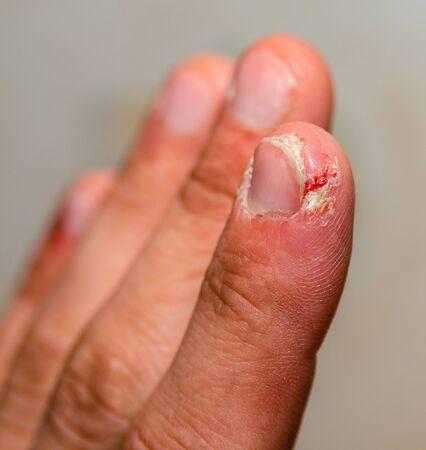 index finger dermatitis on male hand, closeup.