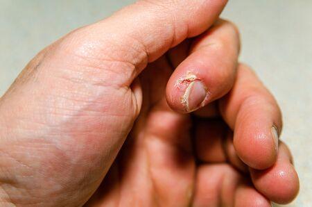 index finger dermatitis on male hand.