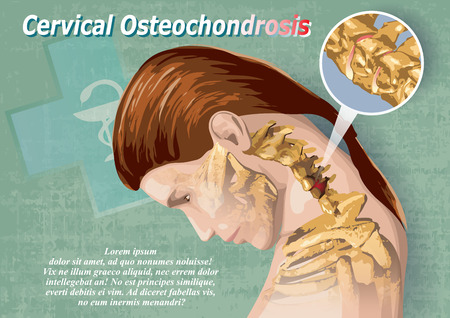intervertebral disc: Female image showing a cervical osteochondrosis medical infographic poster. Illustration