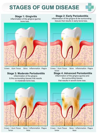 Vector detaillierte Darstellung der Stadien der Zahnfleischerkrankung. Bild von Zähnen und Zahnfleisch in einem Abschnitt von Knochengewebe mit betroffenen Bereichen und Beschreibung.