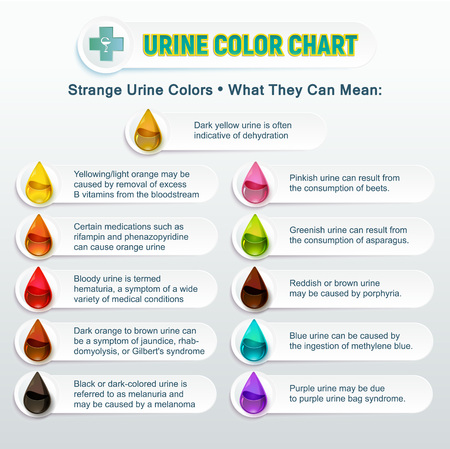 Illustration representing a table of colors of human urine. A chart of multi-colored drops with an explanatory text about the state of urine and their causes Illustration