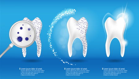 Dental health Concept Vector set. 3d realistic shiny clean and dirty tooth on blue background, clearing and Whitening tooth process. Oral Care, teeth restoration Illustration
