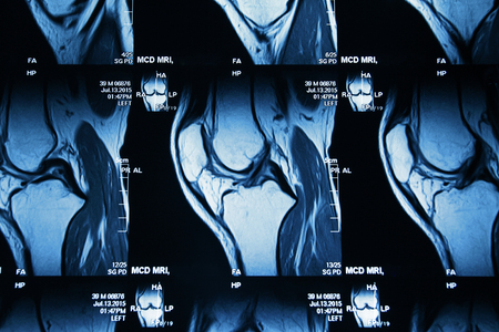 image IRM du genou jambe commune Banque d'images