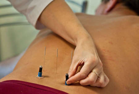 photo of doctor making acupuncture on patient Stock Photo - 5572698
