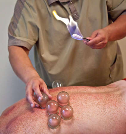 Photo of doctor making cupping-glass massage on patient Stock Photo - 5572699