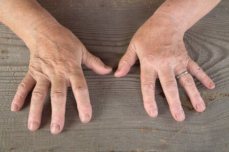 aging skin: Hands of the old woman on a table from unplaned boards