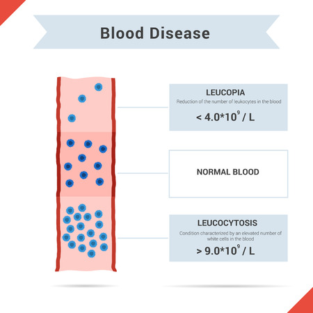 bloodcell: Infographics of blood disease leucocytosis and leukopenia with description for article or other media Illustration