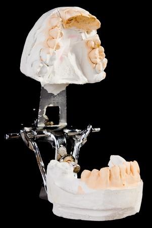 dentition: alabaster cast jaws man. Dental blank.