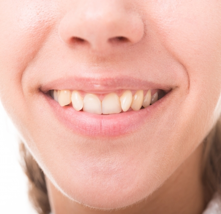 uneven: bad crooked teeth, female mouth closeup
