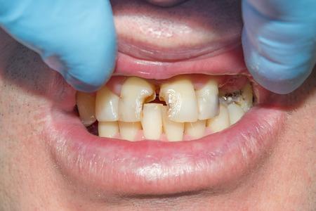 Nahaufnahme eines menschlichen faulen kariösen Zahns im Behandlungsstadium in einer Zahnklinik. Verwendung eines Kofferdam-Systems mit Latexschals und Metallklammern, Herstellung von photopolymeren Verbundfüllungen