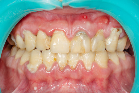 Plakette des Patienten, Stein. Zahnärztliche Behandlung von Zahnbelag, professionelle Mundhygiene. Das Konzept der Schädigung des Rauchens und der Zahnreinigung