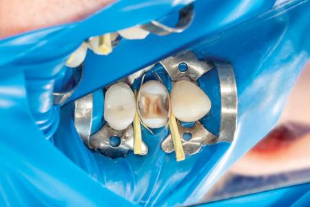 dos dientes laterales de masticación del maxilar superior después del tratamiento de caries. Restauración de la superficie de masticación con un material de relleno de fotopolímero mediante el sistema Rubber Dam