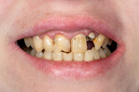 broken tooth closeup. Girl at the dental reception Standard-Bild - 114695156