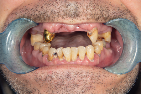 rotten teeth, caries and plaque close-up in an asocially ill patient. The concept of poor hygiene and health problems
