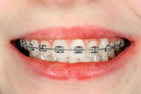 Primer plano de aparatos dentales durante el tratamiento en un ortodoncista. Estética una odontología Foto de archivo