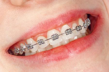 Appareils dentaires en gros plan sur les dents blanches d'une jeune fille. Sourire sain un concept Banque d'images