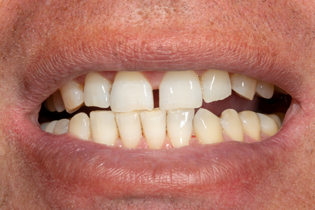 il primo piano dei denti dopo l'igiene e lo sbiancamento. Il volto e il sorriso dell'uomo