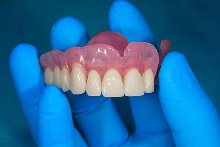 Close-up human denture of the upper jaw on a blue background in the hand of a dentist wearing a medical glove