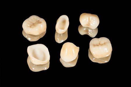 coronas de cerámica de dientes humanos closeup macro aislar sobre fondo negro. El concepto de odontología estética Foto de archivo